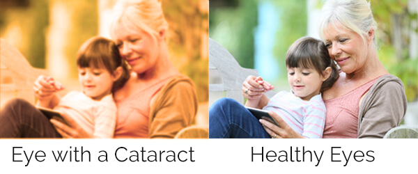 Best Cataract Surgeons in Maryland and Washington DC