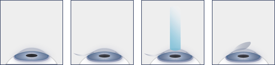 LASIK Surgery Washington DC - Laser Eye Surgery