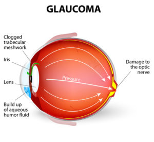 Glaucoma Test and Glaucoma Surgery Washington DC